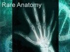 Rare Anatomy TV Show